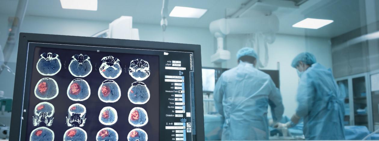 Konsultacje neurochirurgiczne - neurochirurgia Mille Medica