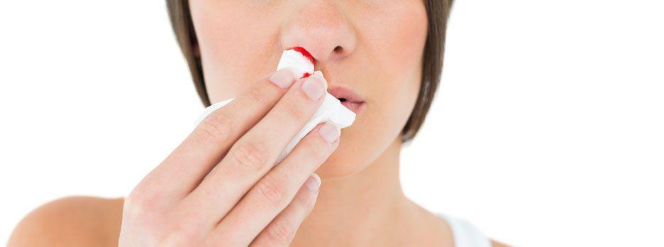 Krwawienia z nosa