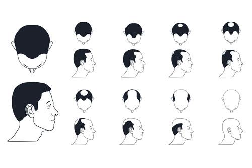 etapy wypadania włosów u mężczyzn
