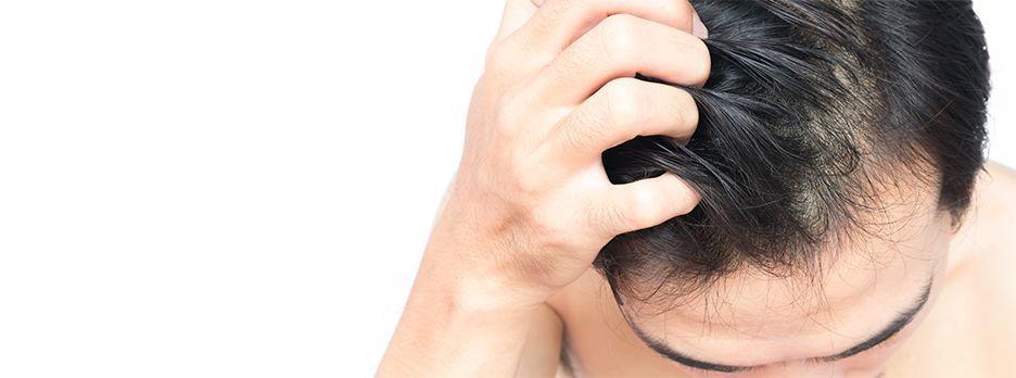 mężczyzna drapie się po włosach na głowie