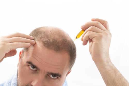 leczenie wypadających włosów