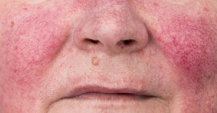 twarz kobiety z trądzikiem różowatym