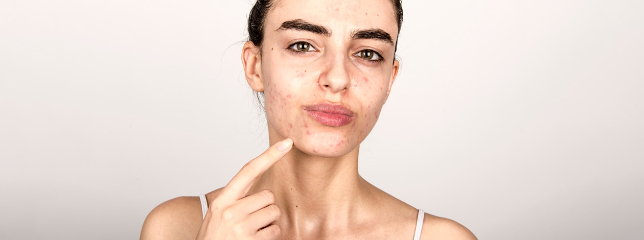 kobieta z trądzikiem młodzieńczym na twarzy