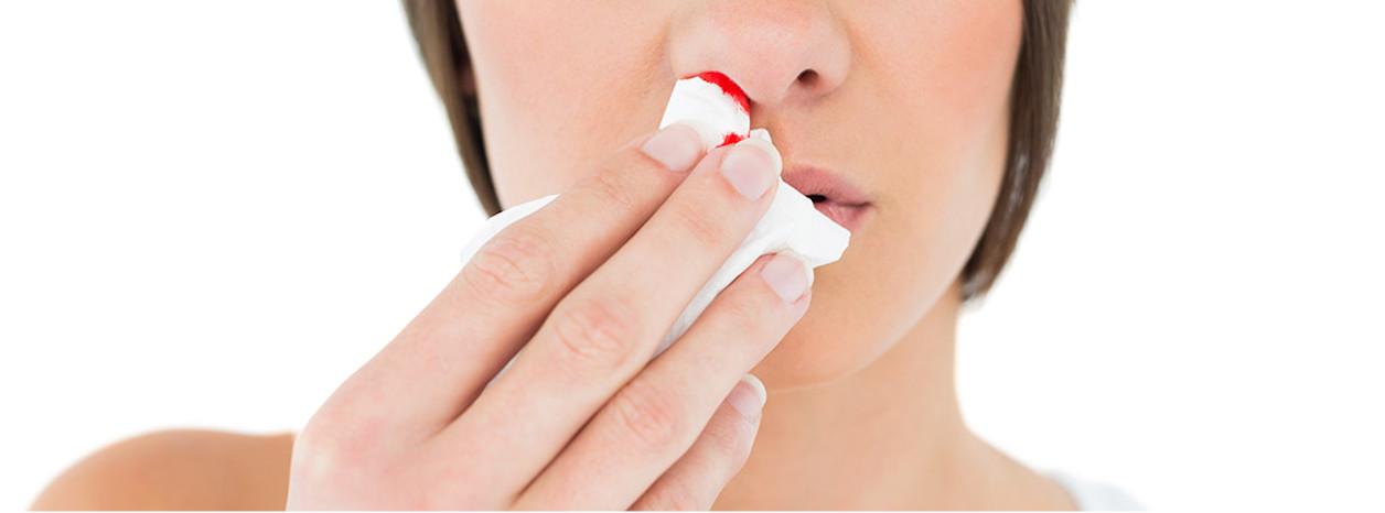 tamowanie krwawienia z nosa