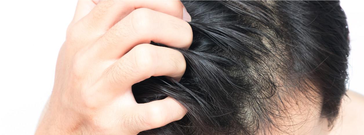 zapalenie skóry głowy