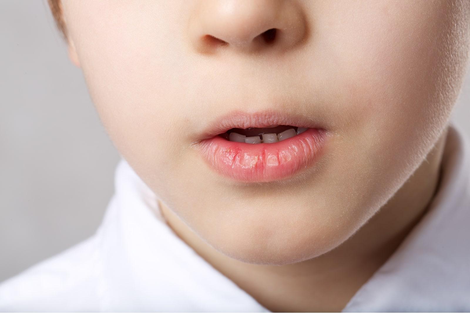 dziecko oddycha przez usta