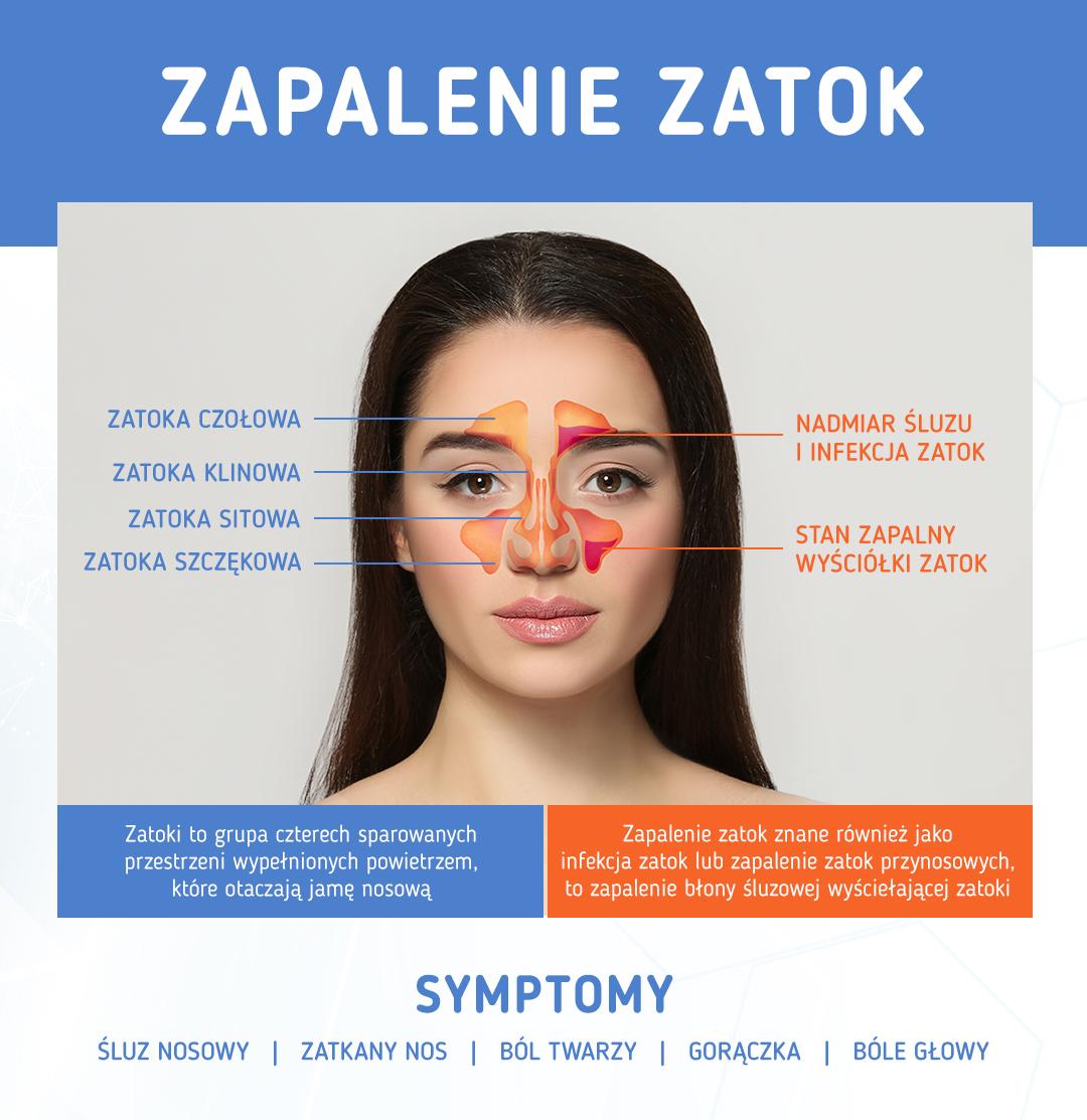 Zapalenie zatok symptomy - infografika